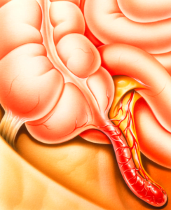 Symptoms of appendicitis in adults